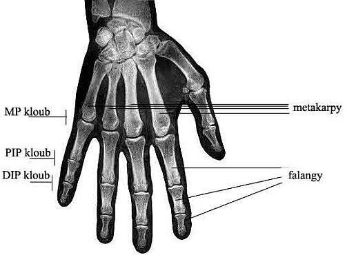 bolestivě se zvětšující klouby prstů u rukou | byroncaspergolf.com